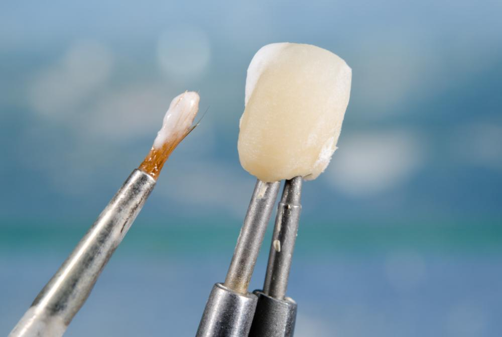 Why A Crown in Needed FAQ | Dental Care at Moon Valley