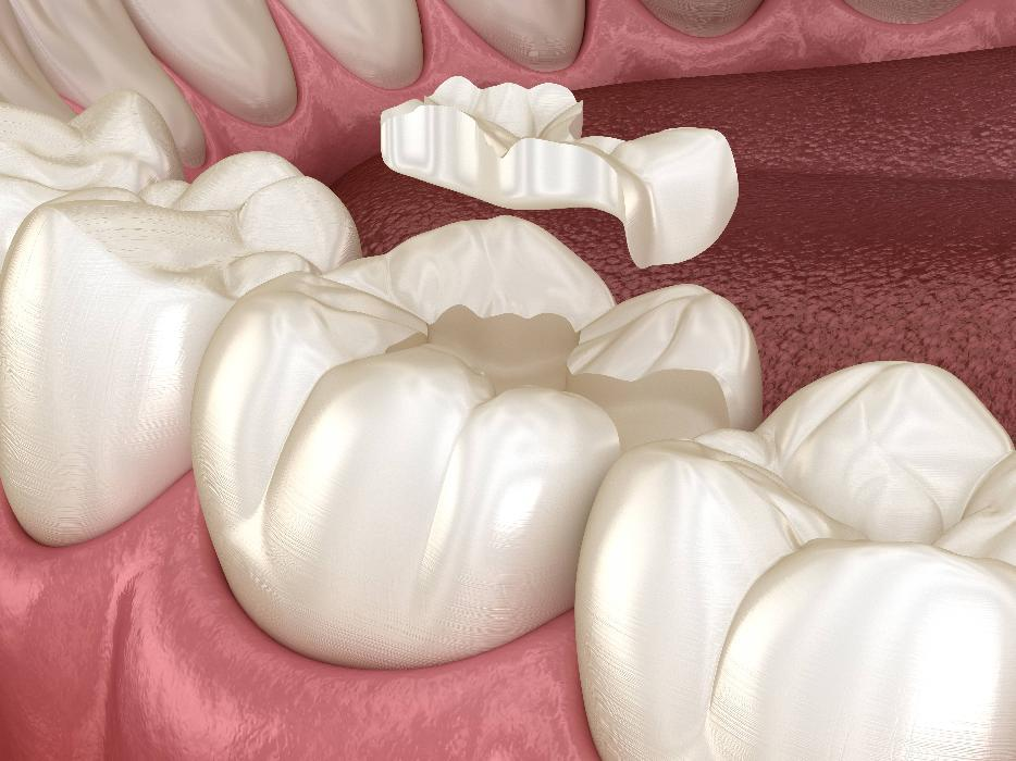 Digital graphic of a tooth colored filling at Dental Care at Moon Valley in 85022