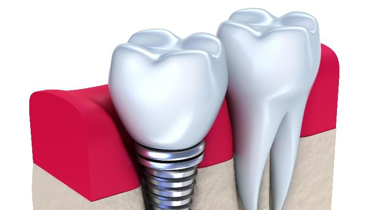 Diagram of dental implant in gums | Dental Implants Phoenix AZ
