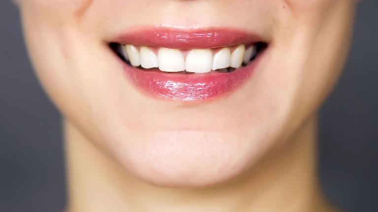 Teeth Whitening | Avoiding Wine Stains | Phoenix AZ