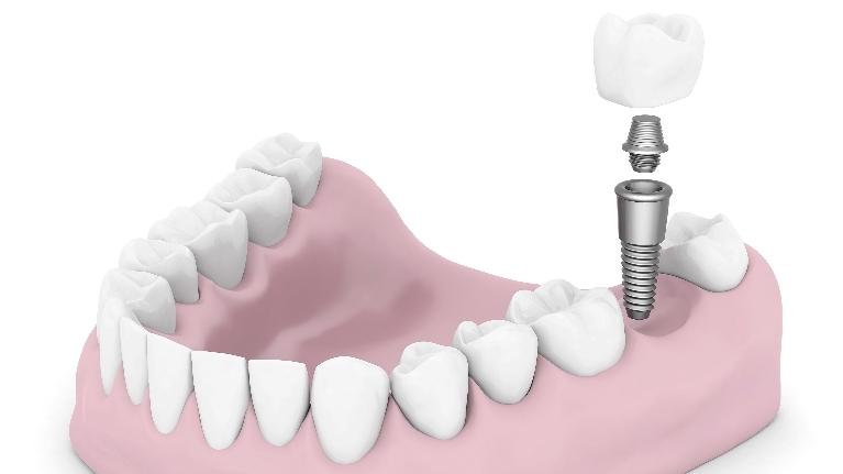 dental implants | phoenix AZ dentist