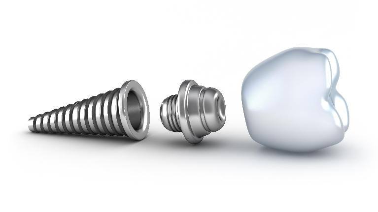 Diagram of screw and dental crown | Dental Implants Phoenix AZ