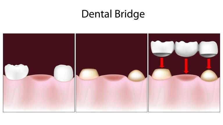Diagram of dental bridge | Dentist Phoenix AZ