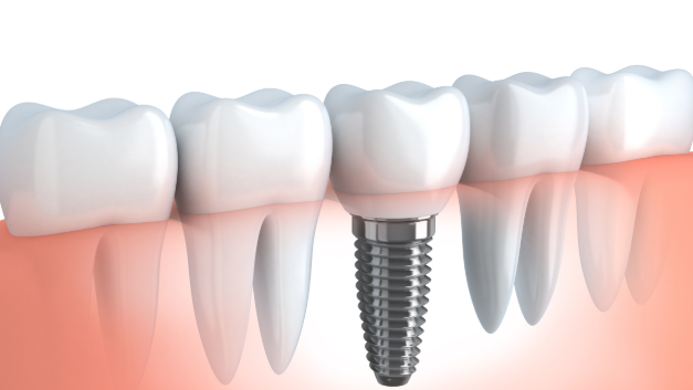 Moon Valley AZ Dental Implants
