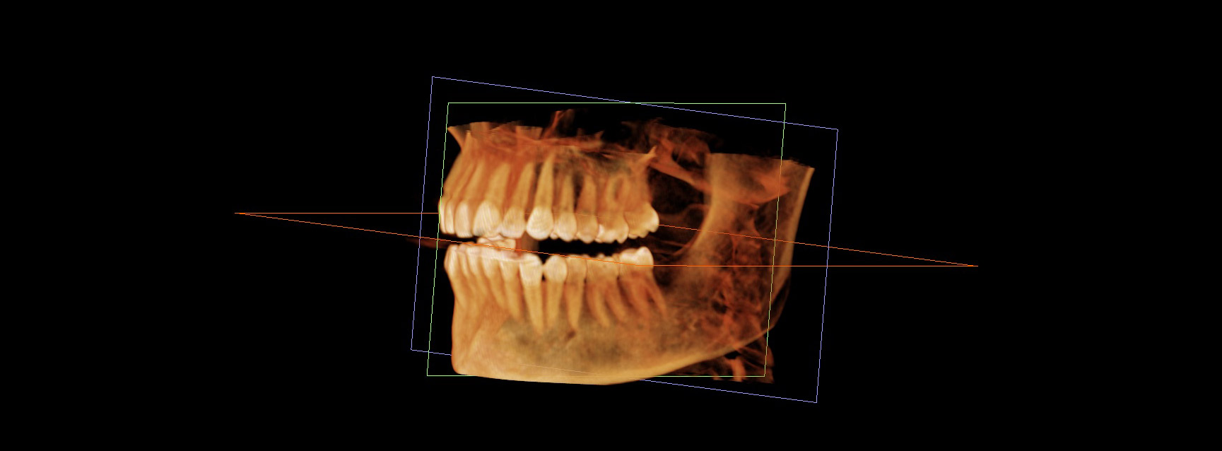 3D Imaging | Dental Care at Moon Valley